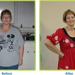 Congrats, You Lost That Excess Weight, But Are You Truly Healthy?